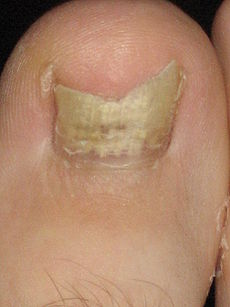Nail fungus infection