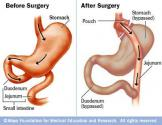 Gastric Bypass Foods To Eat