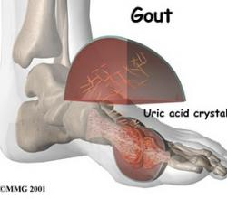 Can Beans Affect Gout? – The 'Gout-ed' not full of the beans