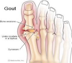 Best Foods To Control Gout