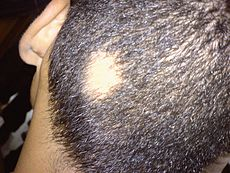 Alopecia areata on scalp