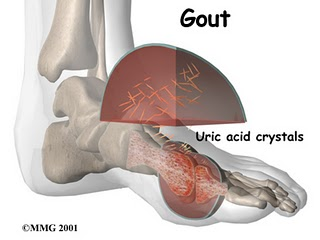 can beans affect gout - the food and ailment joint