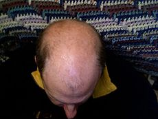 Baldness in a man