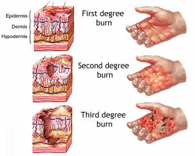 burns - the first, second and third degree burn