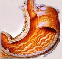 gastritis - the inflamed stomach