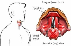 laryngitis