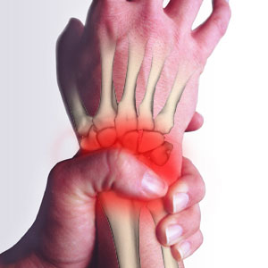 rheumatoid arthritis(1) These Preventive Measures Can Help with Arthritis