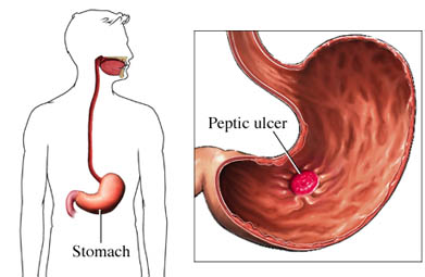 Ulcer in the stomach