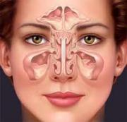 Herbal remedies for sinusitis