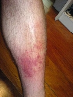 Herbal remedies for cellulitis