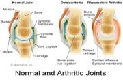 Diet and exercise can reduce the inflammation and stiffness of arthritis.