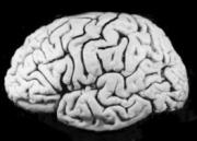 The brain with its folds and furrows having billions of nerve cells too.