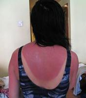 Home remedies for sunburn - Heal it with the softness of home-made remedies
