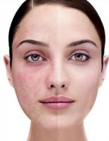 Natural remedies for rosacea for symptomatic relief