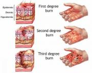 Home Remedies for burns - for beneath-the-skin soothing effect