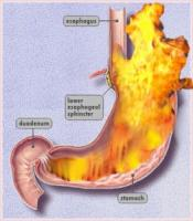 Home remedies for acid reflux - routing every particle to its home in the body ssytem