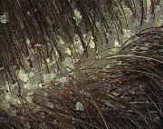Home remedies for dandruff - The fall of  the flakes