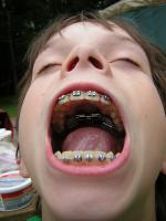 These braces can be quiet a hassle when having halloween treats!
