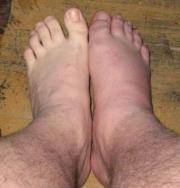 Gout affected legs