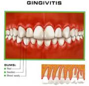 Home Remedies for Gingivitis - Gums in the pink; for teeth in the white!