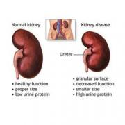 Kidney Failure Foods to Eat