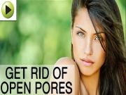 Natural Remedies For Open Pores