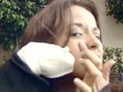 Funny Prank Pimple Spray Prank
