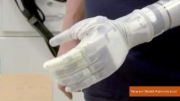 Mind Controlled Arm Becomes First Fda Approved Robotic Prosthetic