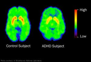 A brain scan shows the area of attention in normal and ADHD kids with lower attention span in ADHD