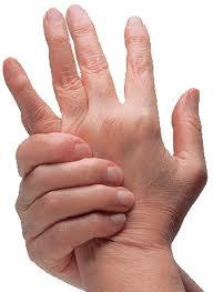 Arthritic hands
