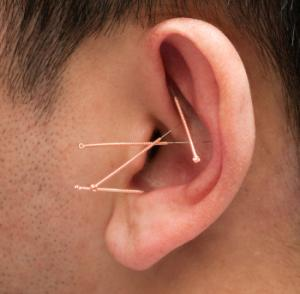 Needles in ear can help you lose weight