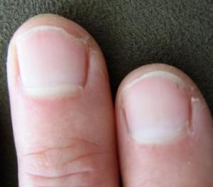 Diet ideas for weak nails