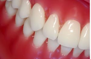 avoid gum disease