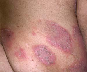 home remedies for eczema - don't let it get under your skin!