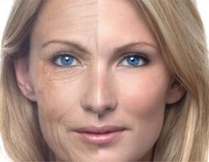 Before and After wrinkle treatment picture
