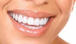All About Brite Smile Teeth Whitening
