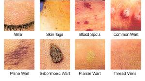 home remedies for warts - make your skin a smooth surface