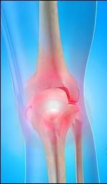 Osteoarthritis affects about 20 million in the US