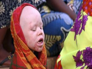 Albino Witchcraft Killings To End In Tanzania