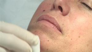 How To Remove Moles From Your Skin 10039454 By Videojug