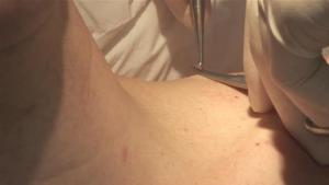How To Remove Skin Tags Using Excision 10039472 By Videojug