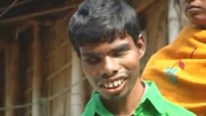 Blind Student Beaten And Forced To Drink Urine