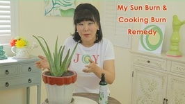 My Sun Burn and Cooking Burn Remedy!
